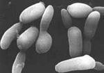 Yarrowia lipolytica -hiivasienen hyvät ominaisuudet rasva-aineenvaihdunnassa on tunnettu jo pitkään, mutta uuden geeniteknologian avulla nuo kyvyt saadaan entistä monipuolisemmin ja tehokkaammin ihmistä hyödyttämään.